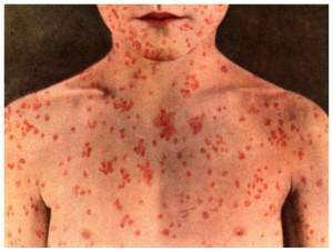 measles_6